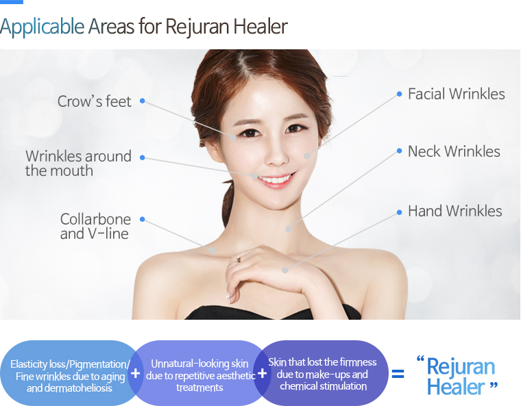 Applicable Areas for Rejuran Healer